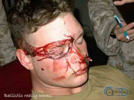 баллистические очки спасли глаза